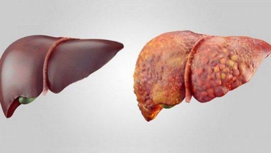 Цирроз печени и его причины