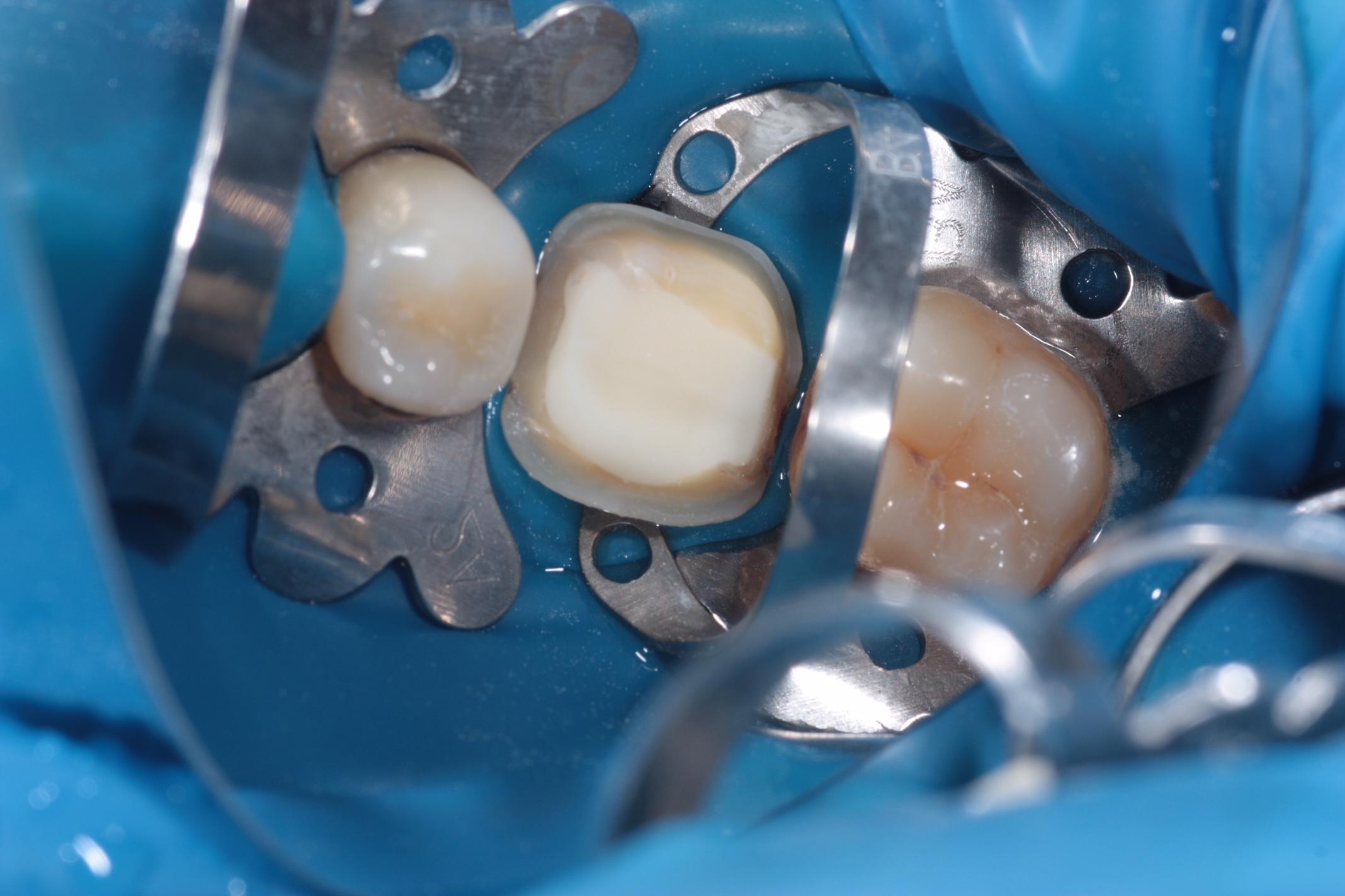 Коффердам: что это такое, и как применяется в стоматологии